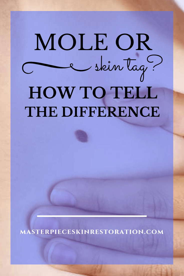 "mole under a woman's arm with blue text overlay, ""Mole or Skin Tag? What's the Difference? 