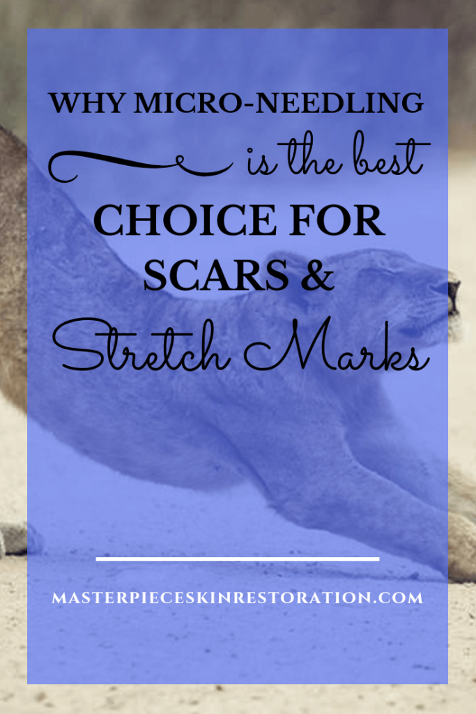 """Lion stretching with blue text overlay, """"Why Micro-Needling Is the Best Choice for Scars & Stretch Marks 