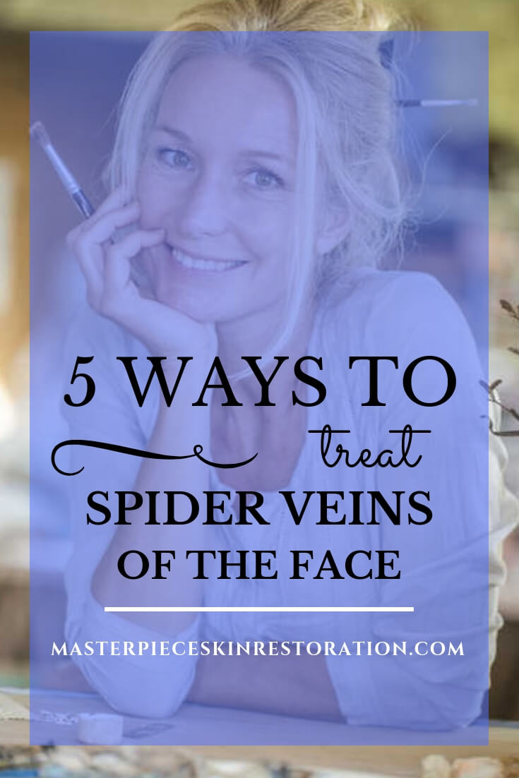 """beautiful mature woman smiling, painting with blue text overlay, """"5 Ways to Treat Spider Veins of the Face 