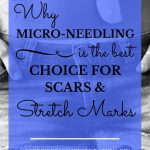 "woman's abdomen with scar and blue text overlay, ""Why Micro-Needling Is the Best Choice for Scars and Stretch Marks"""