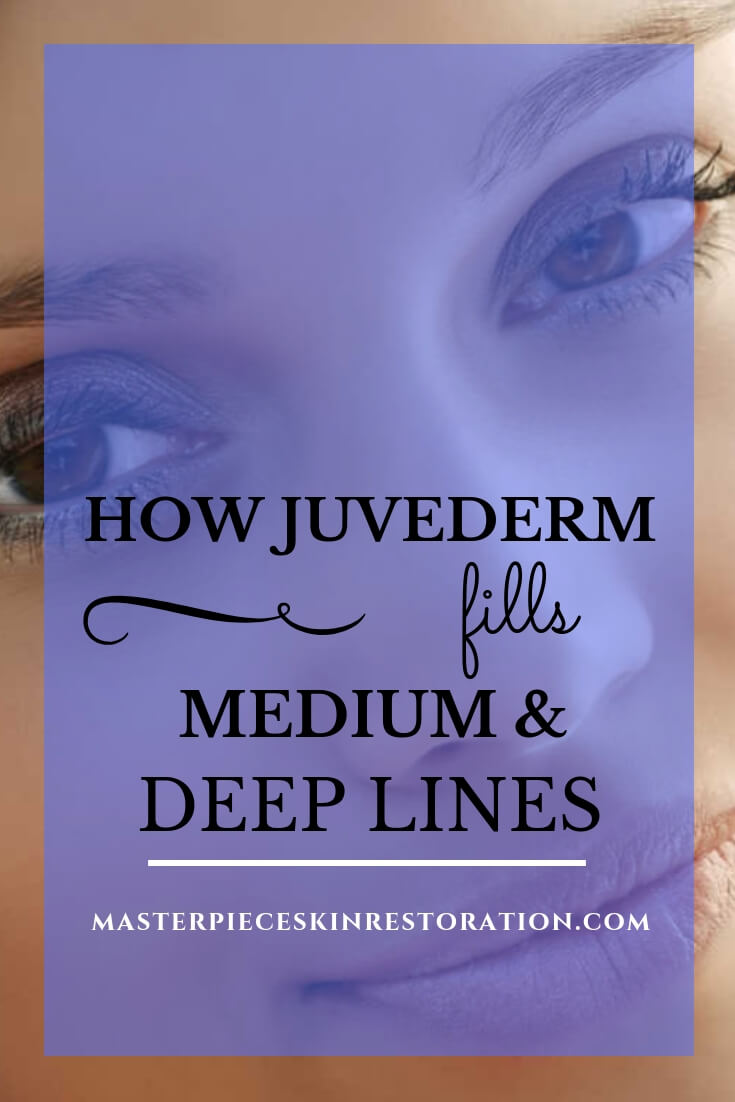 "Closeup of beautiful woman with no wrinkles and blue text overlay, ""How Juvederm Fills Medium & Deep Lines 