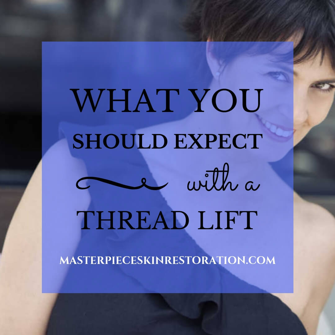 What You Should Expect With a Thread Lift