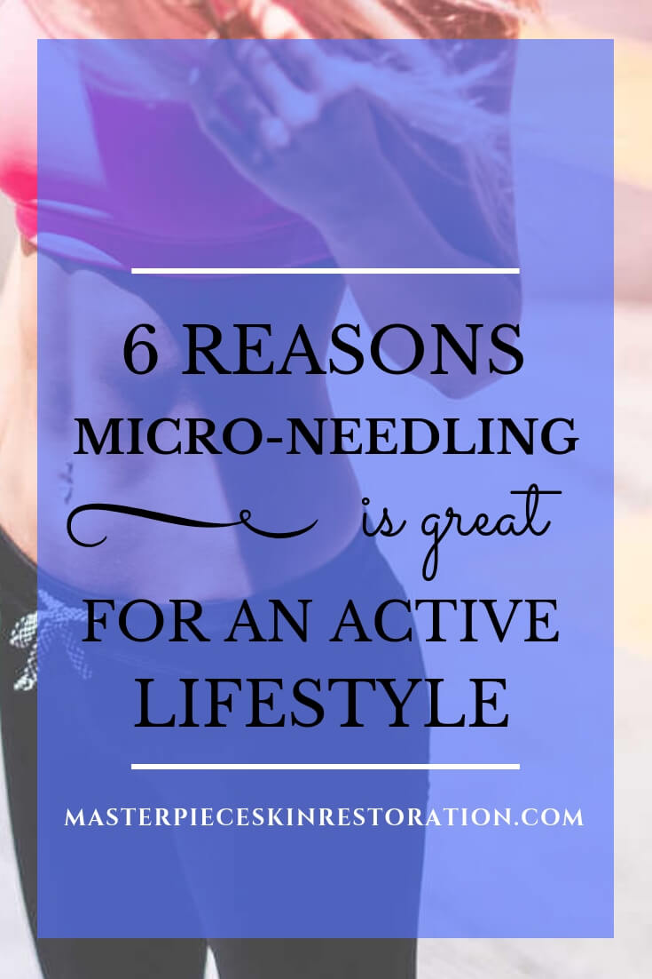 "Woman's torso, black pants, pink sports bra, long blonde hair and blue text overlay, ""6 Reasons Micro-Needling Is Great for an Active Lifestyle 