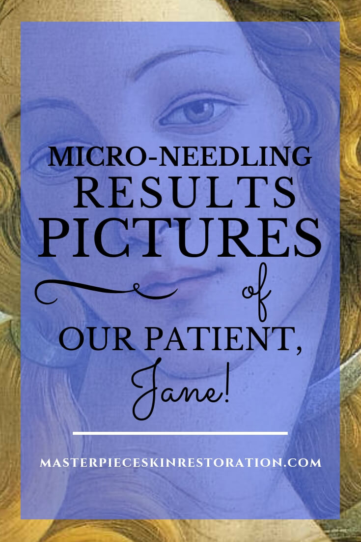 """Botticelli's Venus with blue text overlay, """"Micro-Needling Results   Pictures of Our Patient, Jane   MasterpieceSkinRestoration.com"""""""