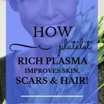 """Beautiful dark skinned woman holding white tulips with blue text overlay, """"Platelet Rich Plasma 