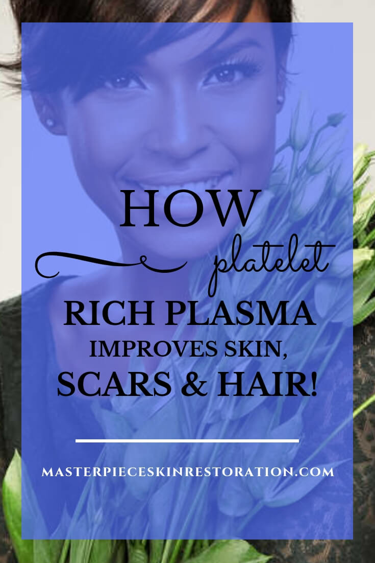 "Beautiful dark skinned woman holding white tulips with blue text overlay, ""Platelet Rich Plasma 