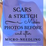 """Woman's fit torso, beautiful skin, wearing blue bikini on the beach with blue text overlay, """"Scars & Stretch Marks   Photos Before and After Micro-Needling   MasterpieceSkinRestoration.com"""""""
