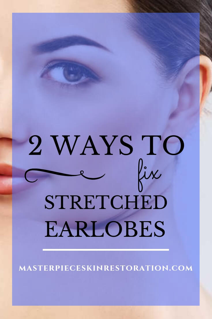 "Closeup of woman looking at camera with beautiful earlobes and blue text overlay, ""2 Ways to Fix Stretched Earlobes 